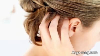 روش های درمان خارش سر