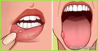 درمان طبیعی آفت دهان