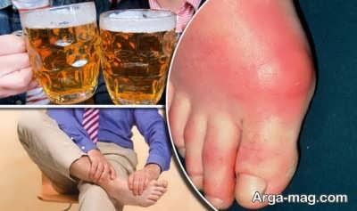 کنترل بیماری نقرس با ترک الکل
