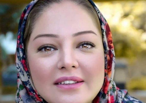 تغییر چهره رزیتا غفاری