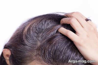عواملی که در رنگ نگرفتن مو موثر است