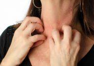 درمان خارش با پماد مومتازون