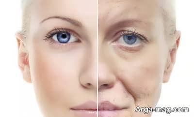 از بین بردن چروک پوست صورت