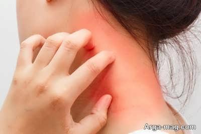 نشانه های سرطان کبد