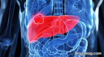 روش های پیشگیری از سرطان کبد