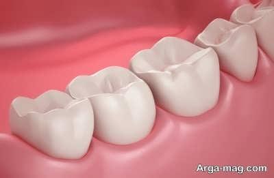 تقویت لثه و دندان