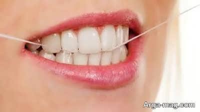 نخ دندان حاوی فلوراید