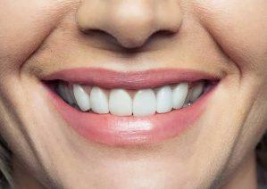 تقویت دندان