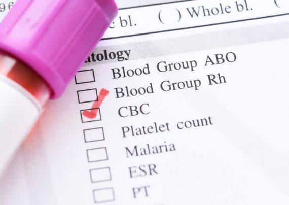 راه های درمان غلظت خون