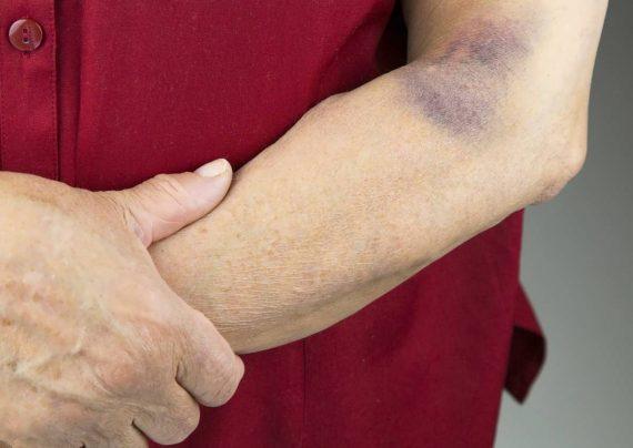 درمان کبودی