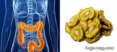 درمان سرطان روده بزرگ با کیوی خشک