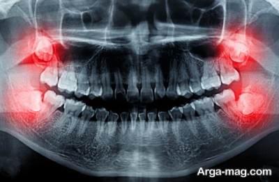 ارائه راهکار های مختلف برای تسکین درد دندان عقل