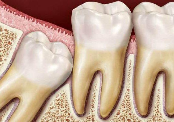 روش های خانگی و طبیعی برای تسکین درد دندان عقل