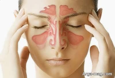 تسکین سردرد سینوسی