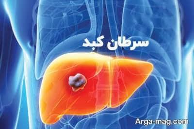 بررسی انواع سرطان کبد
