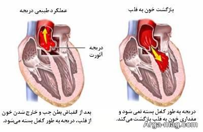 روش های درمان روماتیسم قلبی و نشانه های آن