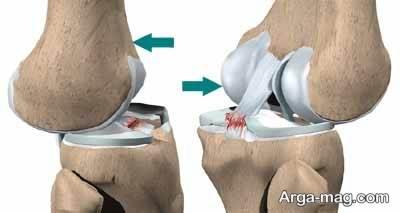 انواع رباط در مفصل زانو