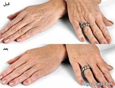 با استفاده از ماسک های طبیعی برای از بین بردن چروک دست