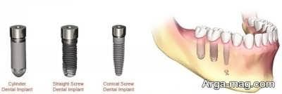 روش های متوالی ایمپلنت دندان