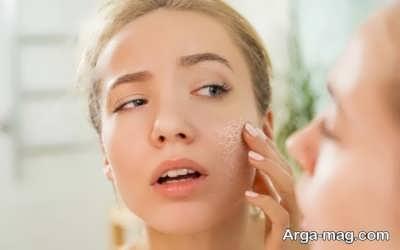 درمان طبیعی خشکی پوست