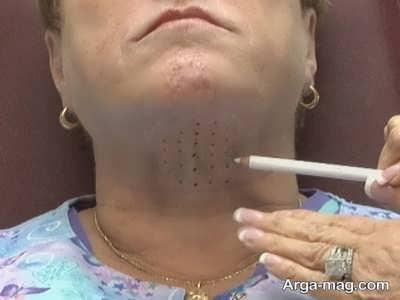 رفع گرفتگی گردن با ژل تزریقی