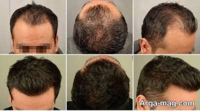 فواید پروتز کردن موها