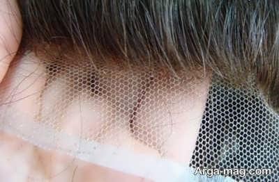 پروتز کردن موی سر