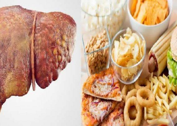 مواد غذایی مضر برای کبد چرب