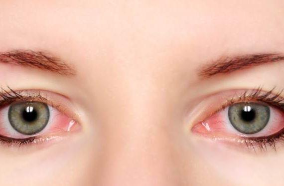 رفع قرمزی چشم با چند روش خانگی