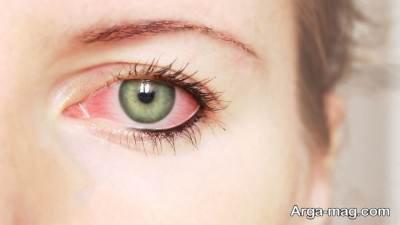 علائم و درمان عفونت چشم