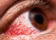 علائم عفونت چشم و درمان آن