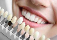 مراحل مختلف ایمپلنت دندان