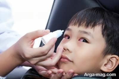 درمان انحراف چشم با جراحی
