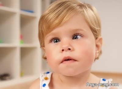 انحراف چشم در کودکان
