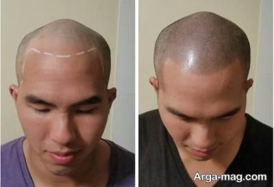 قبل و بعد از انجام میکرو اسکالپ