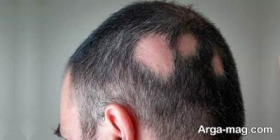 درمان طاسی و ریزش یکه ای مو با میکرو اسکالپ