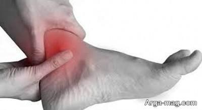 درد در ناحیه ساق پا