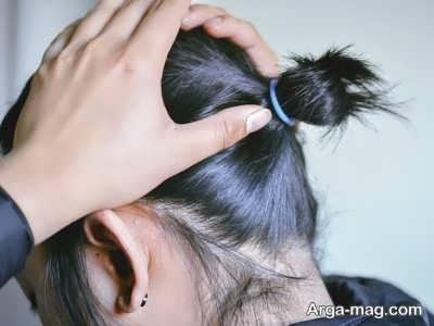 درمان ریزش مو با اسپیرونولاکتون