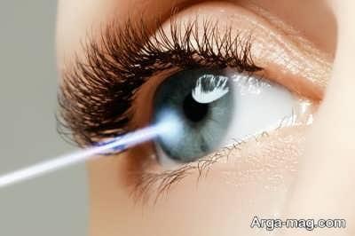 بهبود انحراف چشم