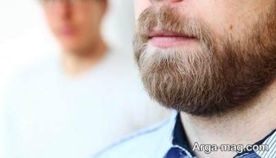 کاشتن ریش و سبیل با روش جدید