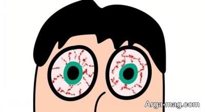 علائم خستگی چشم