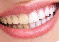 مخلوط جوش شیرین با مواد دیگر برای سفید کردن دندان