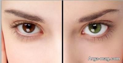 تبدیل رنگ چشم تیره به روشن