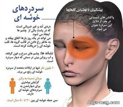 روش های درمان سردرد خوشه ای