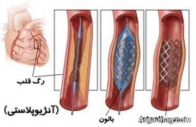 علائم گرفتگی رگ های قلب