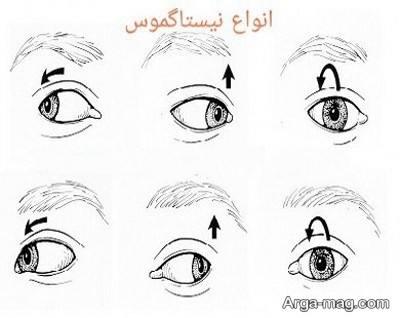 علائم لرزش چشم