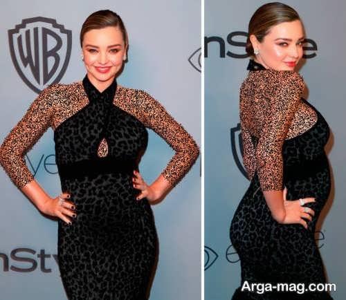 مدل لباس بارداری زیبا و کوتاه