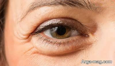 رفع و کاهش پف چشم