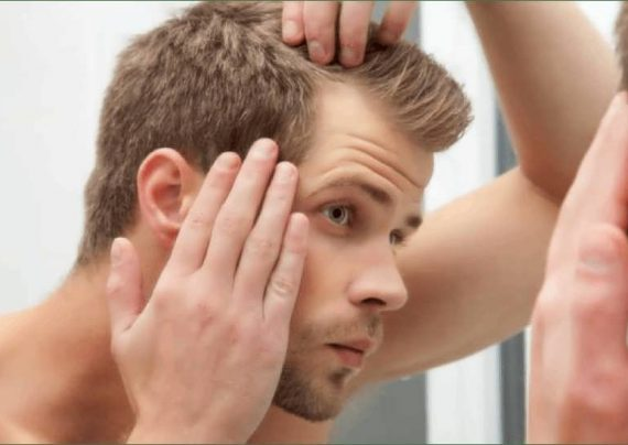 نحوه کاشت مو به روش fit