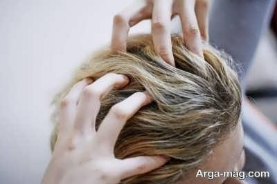 روش fit در کاشت مو